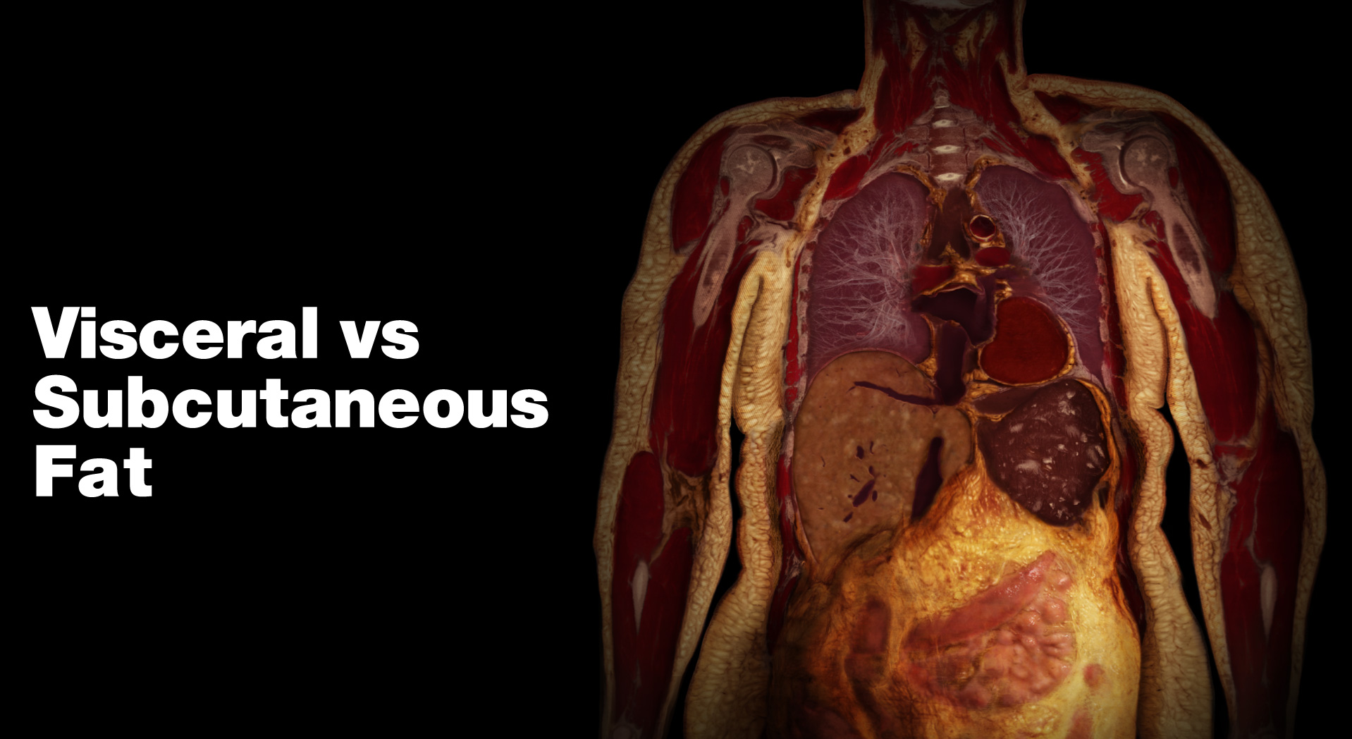 Visceral Fat Vs Subcutaneous Fat 28